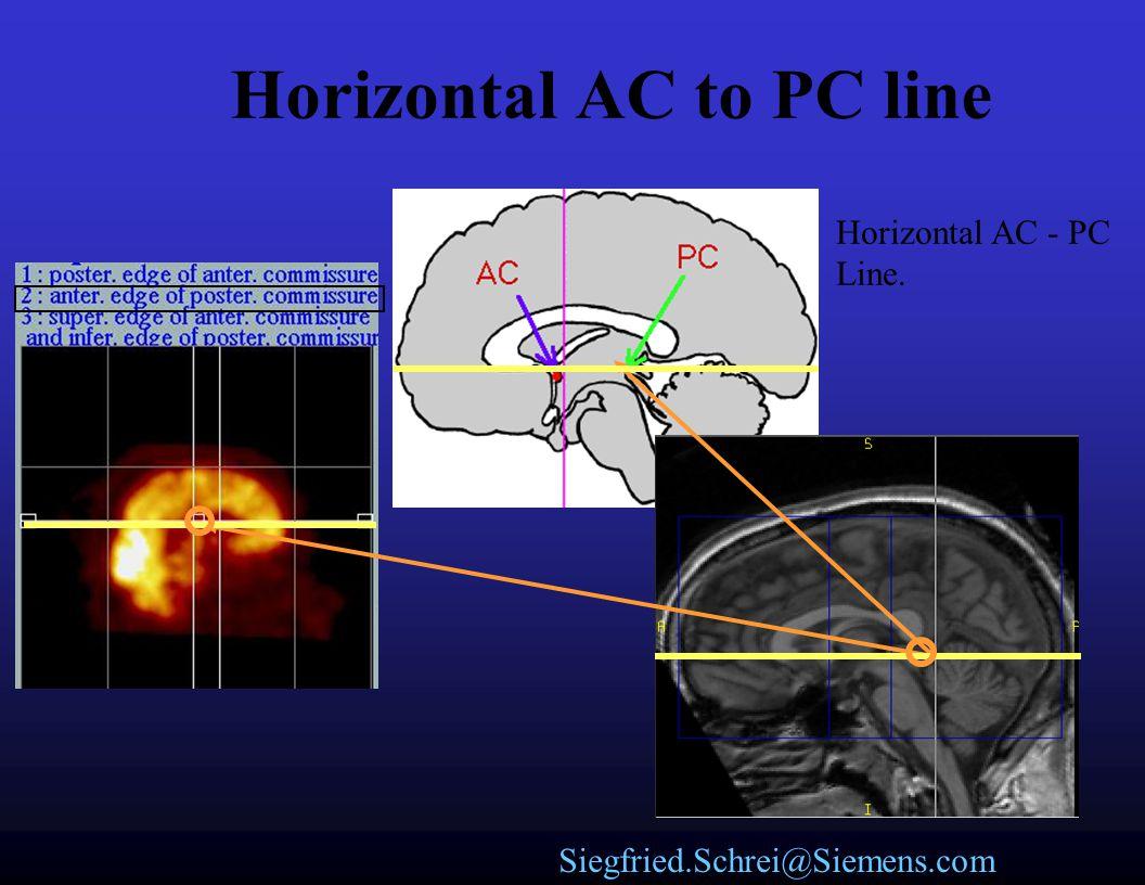 Siegfried.Schrei@Siemens.com Rotate Brain to Anterior and Posterior commissure axis Horizontal AC - PC Line.