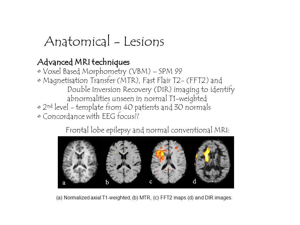 Anatomical - Lesions Advanced MRI techniques Voxel Based Morphometry (VBM) – SPM 99 Magnetisation Transfer (MTR), Fast Flair T2- (FFT2) and Double Inversion Recovery (DIR) imaging to identify abnormalities unseen in normal T1-weighted 2 nd level - template from 40 patients and 30 normals Concordance with EEG focus .