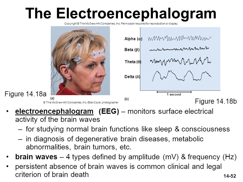 14-52 The Electroencephalogram electroencephalogram (EEG) – monitors surface electrical activity of the brain waves –for studying normal brain functio