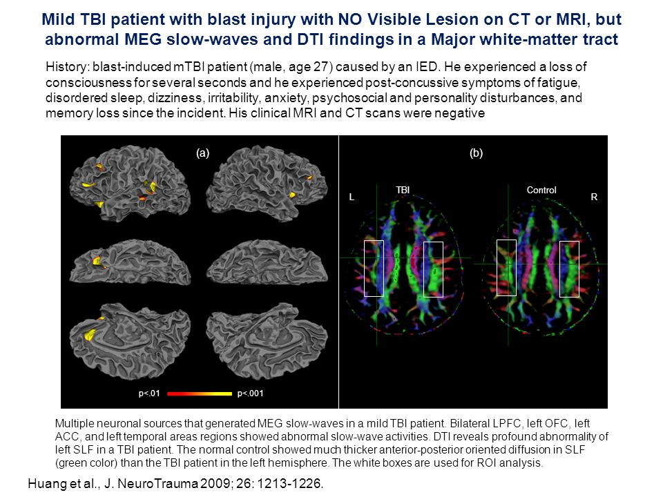 Mild TBI patient with blast injury with NO Visible Lesion on CT or MRI, but abnormal MEG slow-waves and DTI findings in a Major white-matter tract Multiple neuronal sources that generated MEG slow-waves in a mild TBI patient.