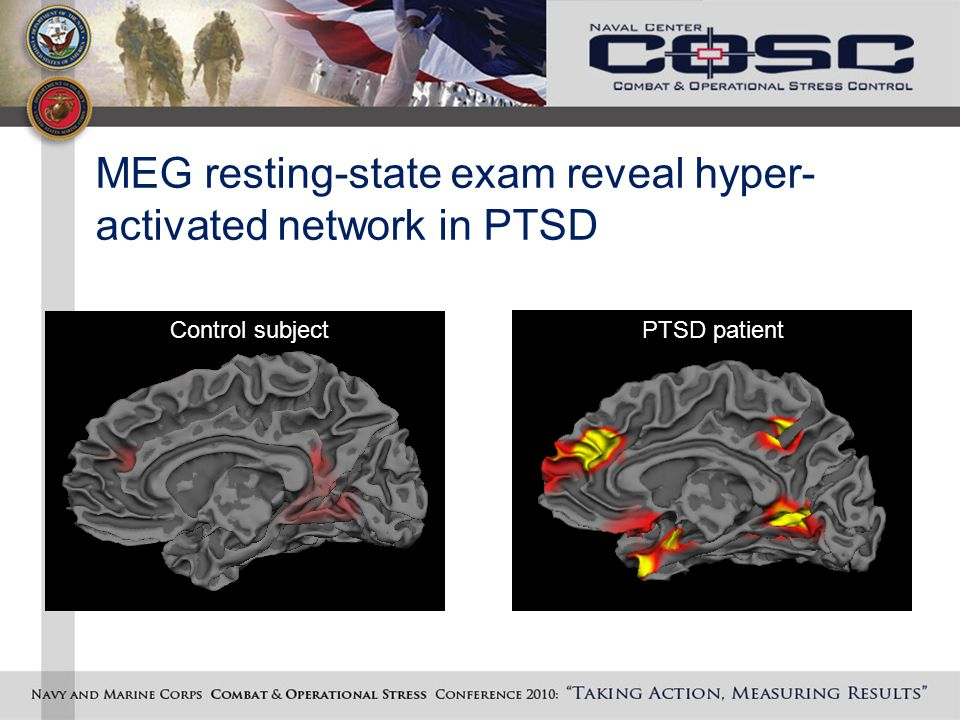 MEG resting-state exam reveal hyper- activated network in PTSD Control subject PTSD patient