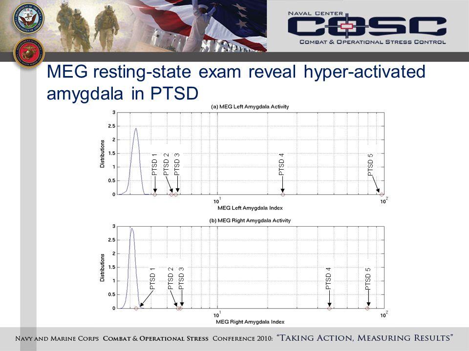 MEG resting-state exam reveal hyper-activated amygdala in PTSD PTSD 1PTSD 2PTSD 3PTSD 4 PTSD 5 PTSD 1PTSD 2PTSD 3PTSD 4 PTSD 5