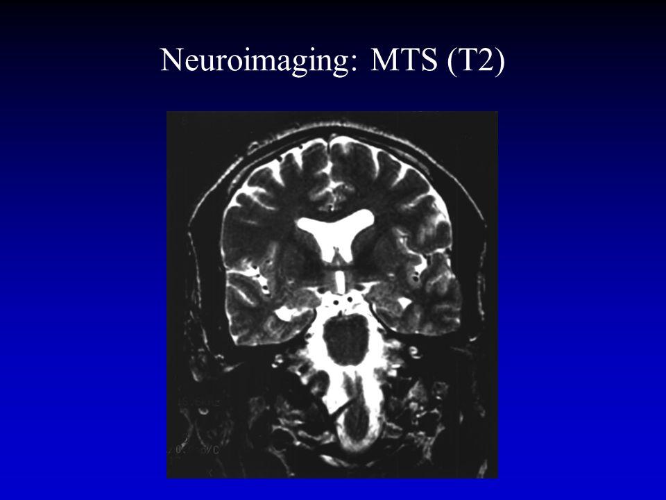 Neuroimaging: MTS (T2)