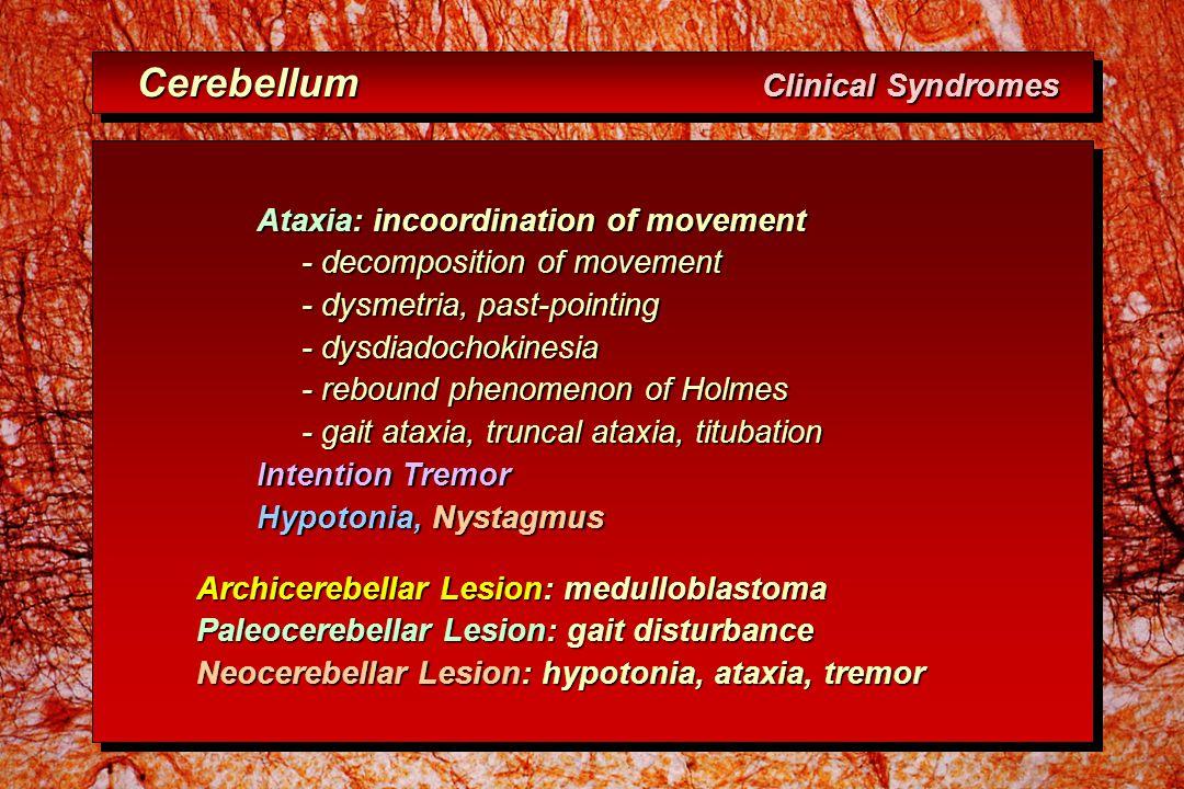 Cerebellum Clinical Syndromes Cerebellum Clinical Syndromes Ataxia: incoordination of movement - decomposition of movement - decomposition of movement - dysmetria, past-pointing - dysmetria, past-pointing - dysdiadochokinesia - dysdiadochokinesia - rebound phenomenon of Holmes - rebound phenomenon of Holmes - gait ataxia, truncal ataxia, titubation - gait ataxia, truncal ataxia, titubation Intention Tremor Hypotonia, Nystagmus Archicerebellar Lesion: medulloblastoma Paleocerebellar Lesion: gait disturbance Neocerebellar Lesion: hypotonia, ataxia, tremor