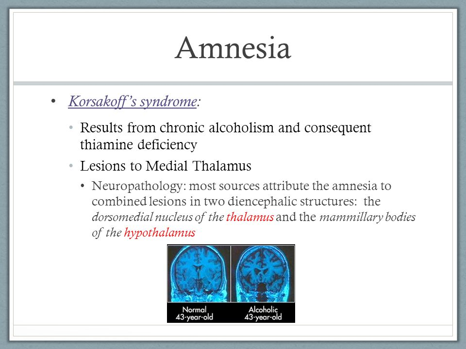 Amnesia Results from chronic alcoholism and consequent thiamine deficiency Lesions to Medial Thalamus Neuropathology: most sources attribute the amnesia to combined lesions in two diencephalic structures: the dorsomedial nucleus of the thalamus and the mammillary bodies of the hypothalamus Korsakoff's syndrome: Korsakoff's syndrome