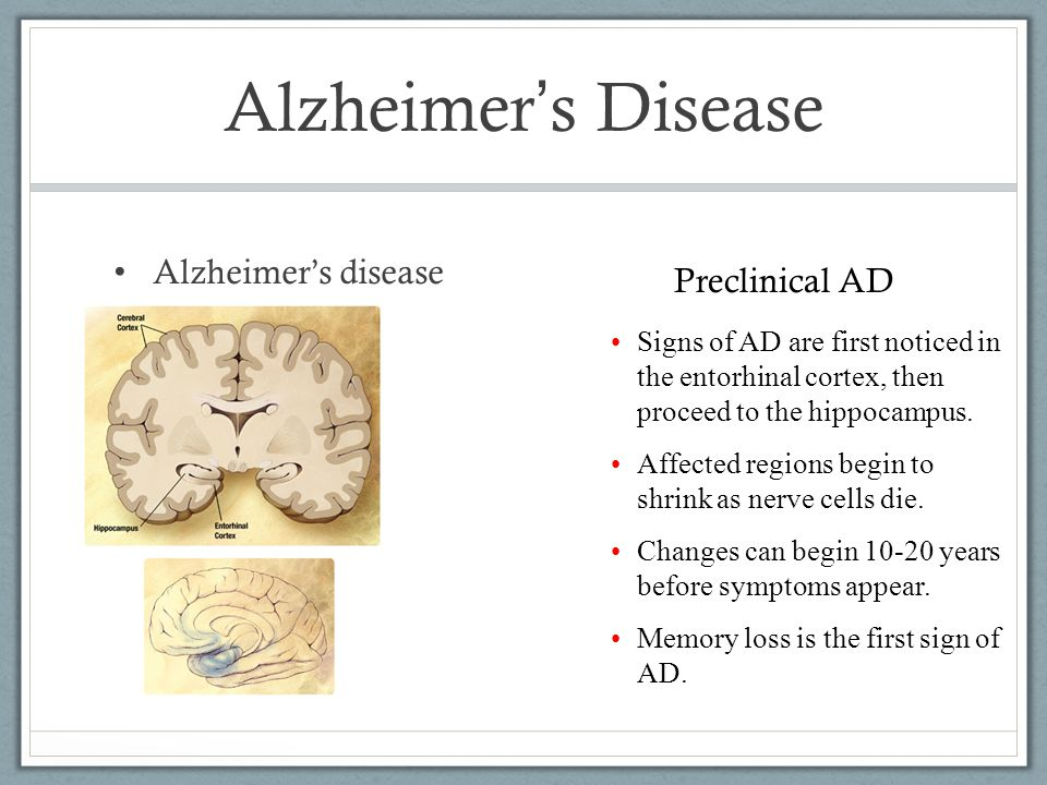 Alzheimer ' s Disease Alzheimer's disease Signs of AD are first noticed in the entorhinal cortex, then proceed to the hippocampus.