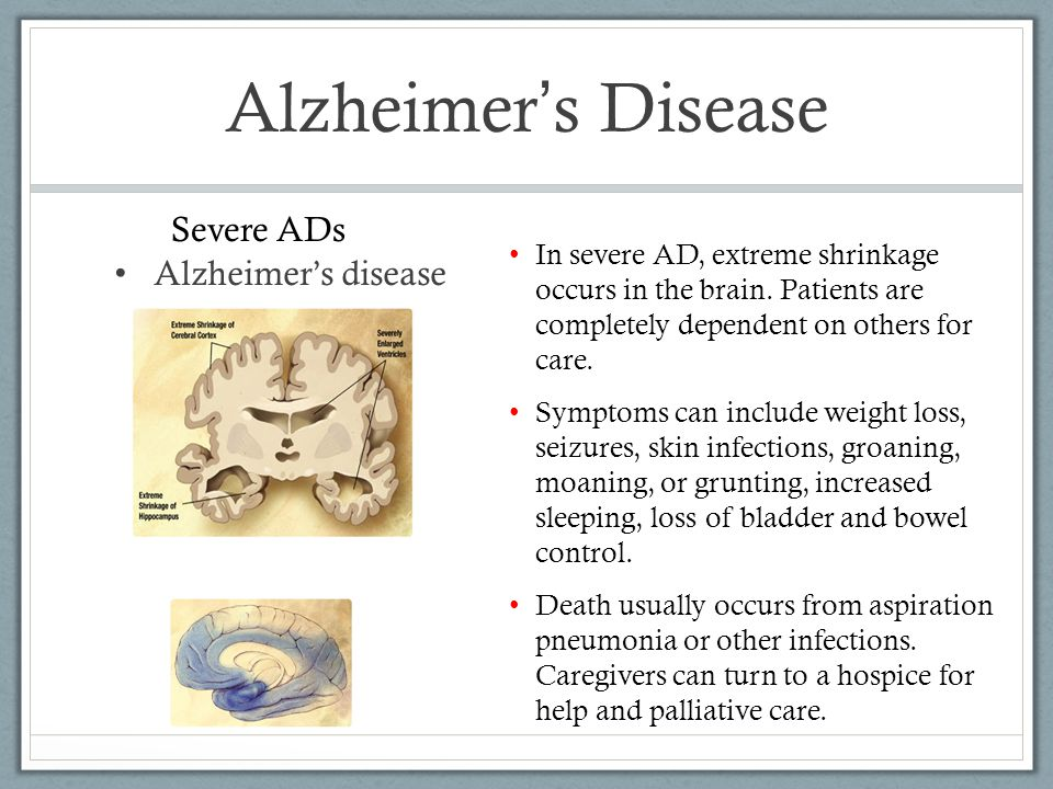 Alzheimer ' s Disease Alzheimer's disease In severe AD, extreme shrinkage occurs in the brain.