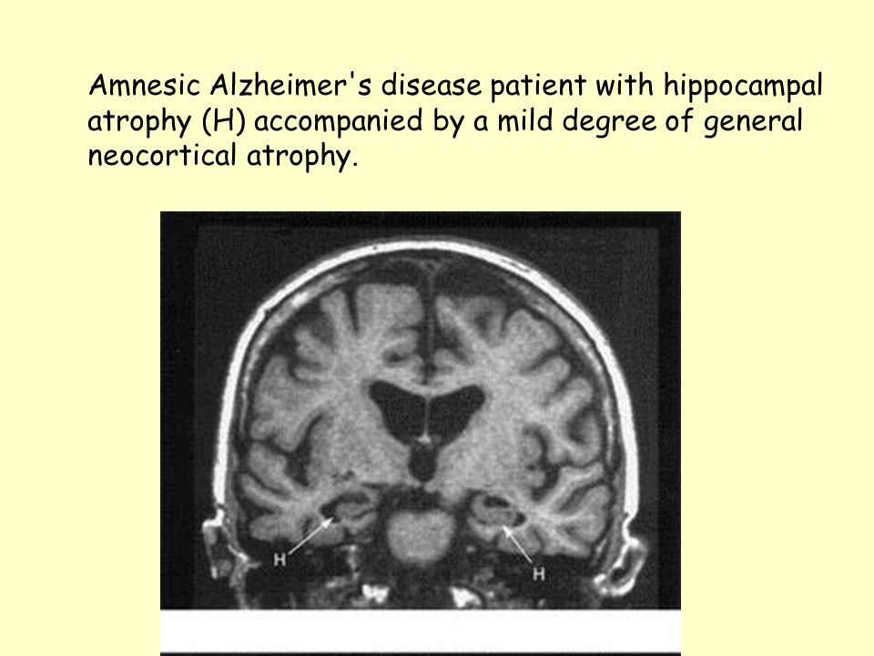 Amnesic Alzheimer s disease patient with hippocampal atrophy (H) accompanied by a mild degree of general neocortical atrophy.