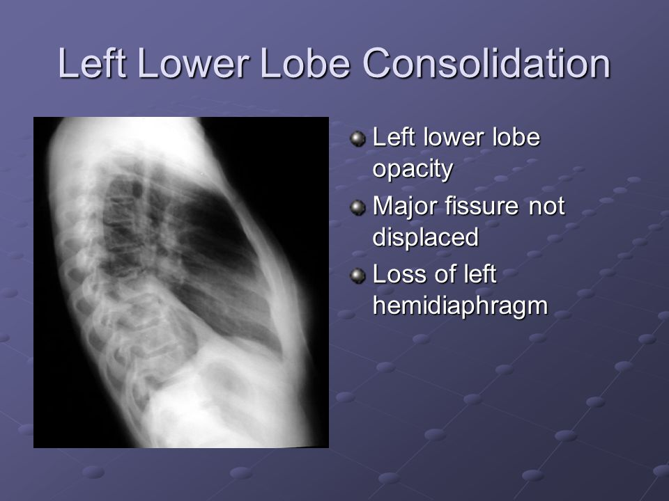 Left Lower Lobe Consolidation Left lower lobe opacity Major fissure not displaced Loss of left hemidiaphragm