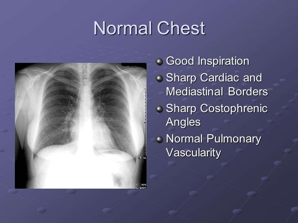 Normal Chest Good Inspiration Sharp Cardiac and Mediastinal Borders Sharp Costophrenic Angles Normal Pulmonary Vascularity
