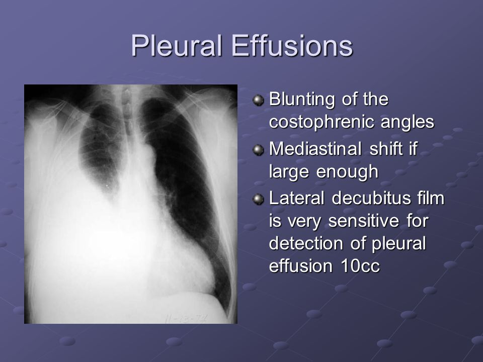 Pleural Effusions Blunting of the costophrenic angles Mediastinal shift if large enough Lateral decubitus film is very sensitive for detection of pleural effusion 10cc