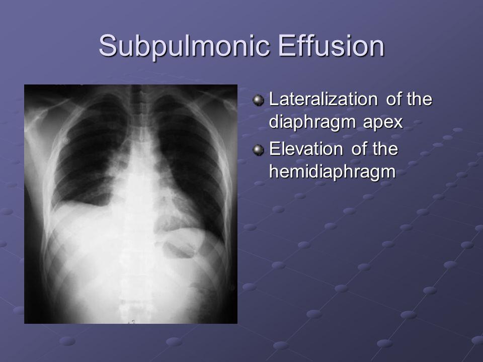 Subpulmonic Effusion Lateralization of the diaphragm apex Elevation of the hemidiaphragm