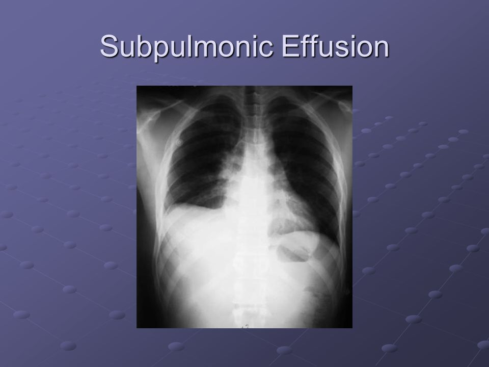 Subpulmonic Effusion