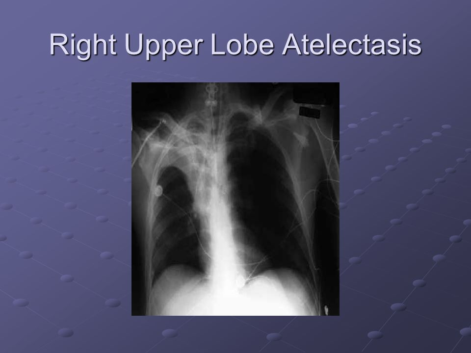Right Upper Lobe Atelectasis