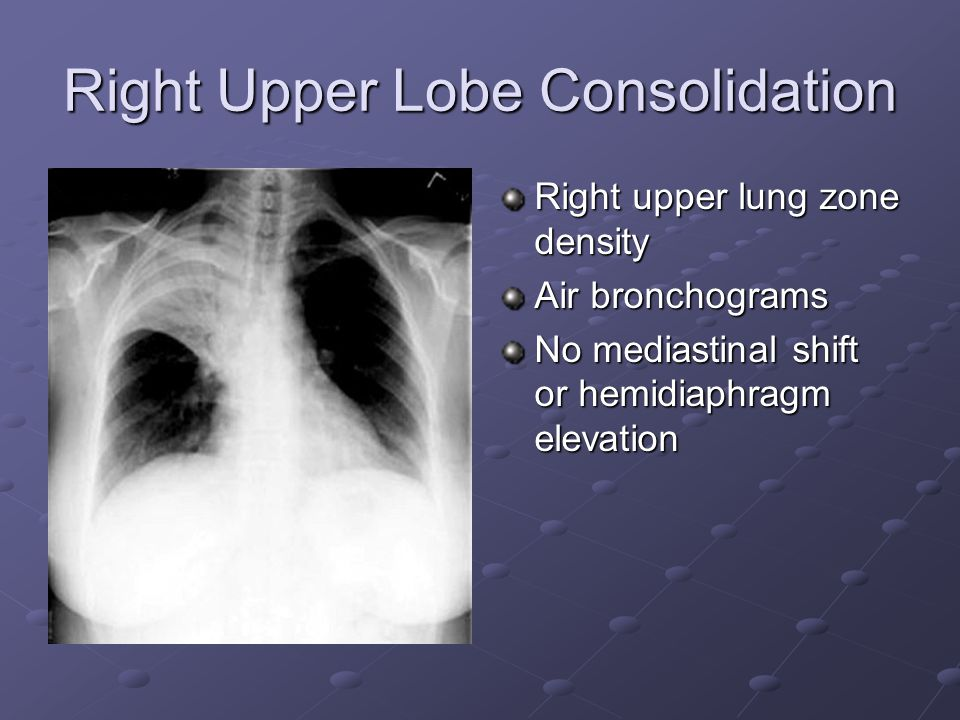 Right Upper Lobe Consolidation Right upper lung zone density Air bronchograms No mediastinal shift or hemidiaphragm elevation