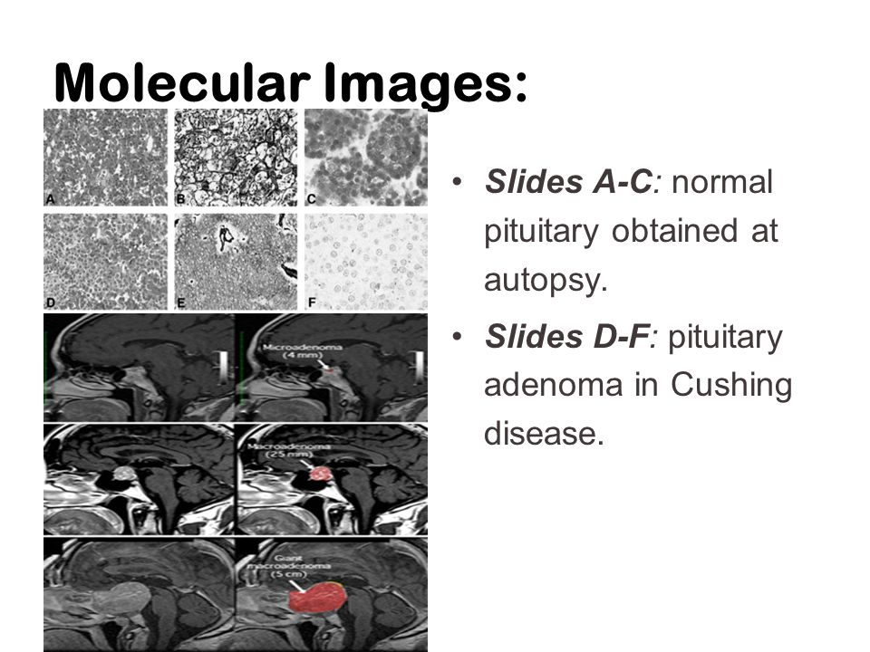 Molecular Images: Slides A-C: normal pituitary obtained at autopsy.