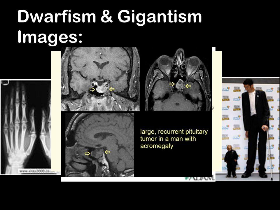 Dwarfism & Gigantism Images: