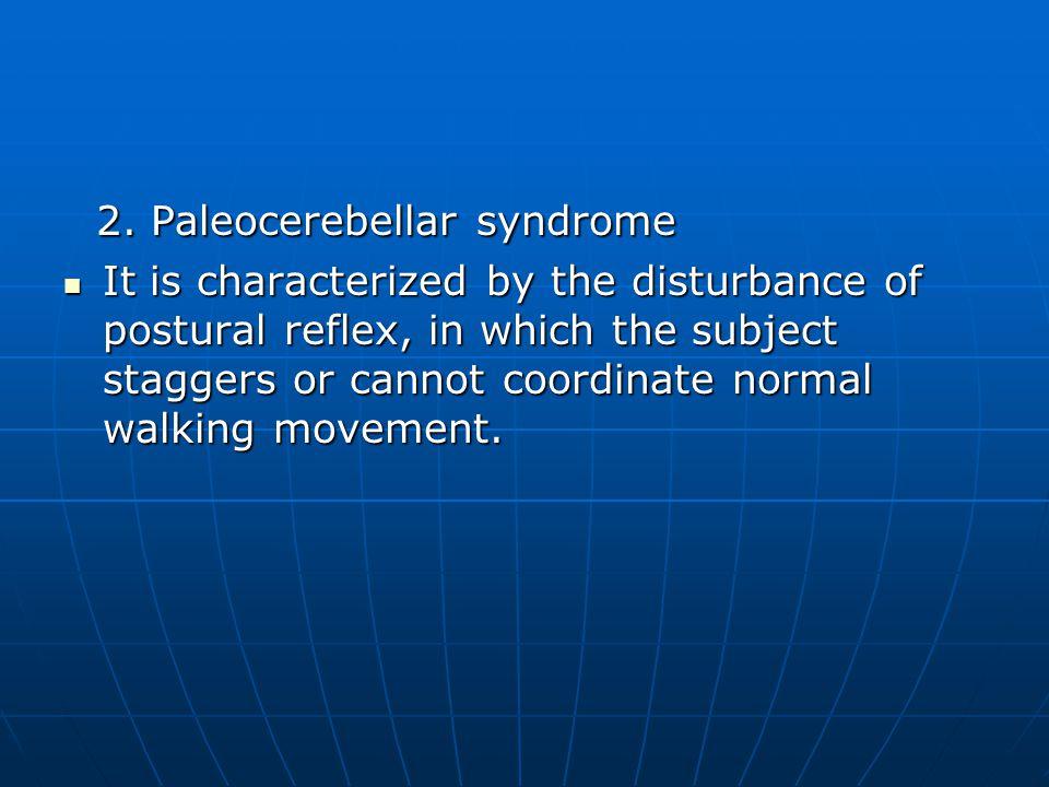 2.Paleocerebellar syndrome 2.