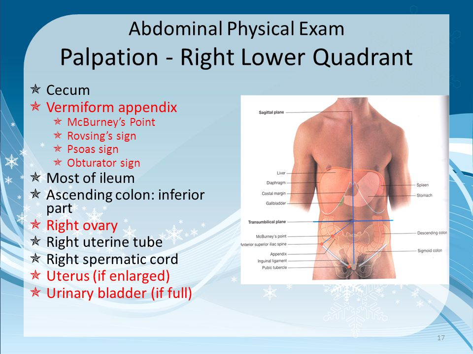 Abdominal Physical Exam Palpation - Right Lower Quadrant  Cecum  Vermiform appendix  McBurney's Point  Rovsing's sign  Psoas sign  Obturator sig