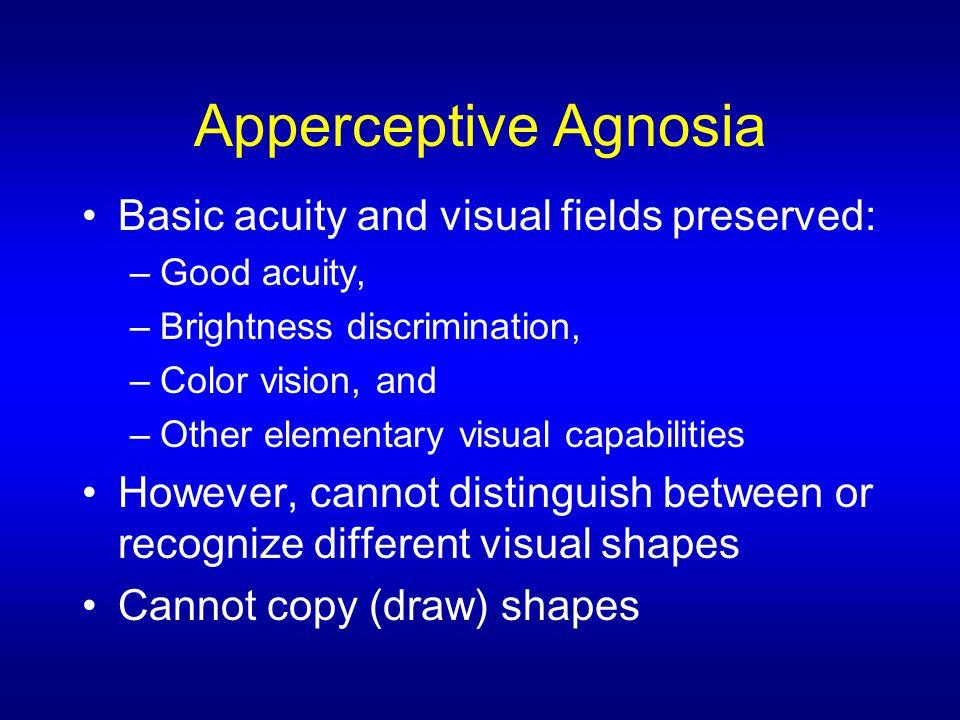 Capgras Syndrome Also called Capgras Delusion.