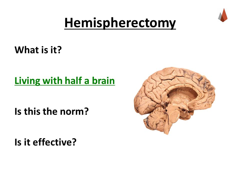 Hemispherectomy What is it Living with half a brain Is this the norm Is it effective