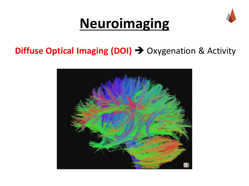 Neuroimaging Diffuse Optical Imaging (DOI)  Oxygenation & Activity