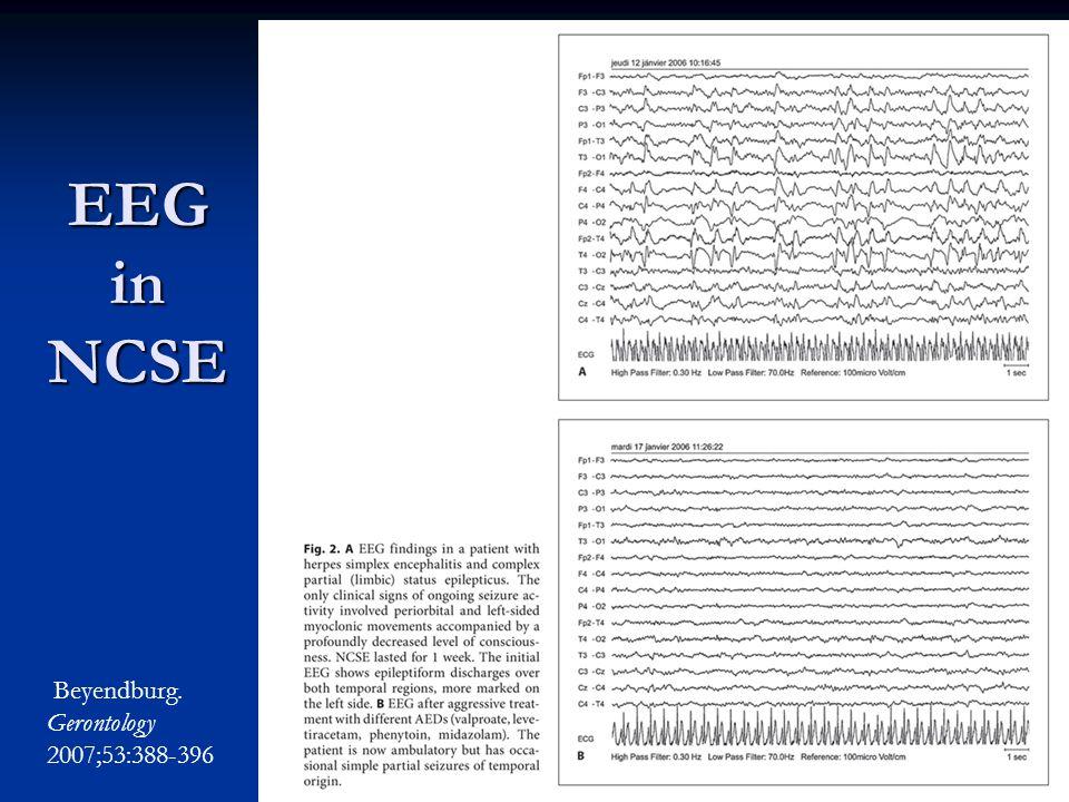 EEG in NCSE Beyendburg. Gerontology 2007;53:388-396