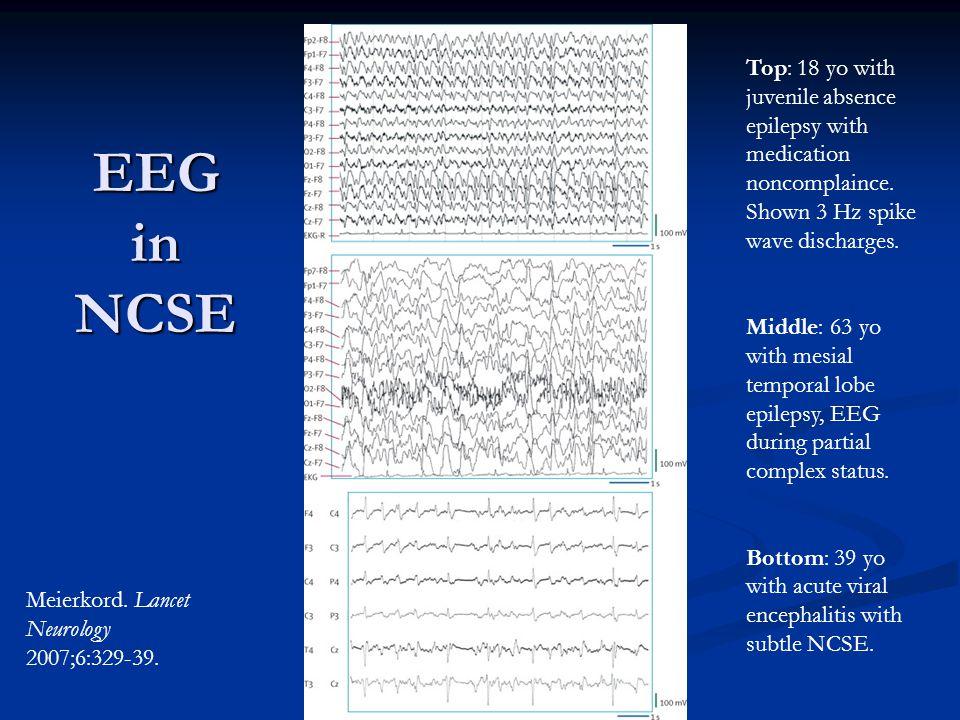 EEG in NCSE Meierkord. Lancet Neurology 2007;6:329-39.