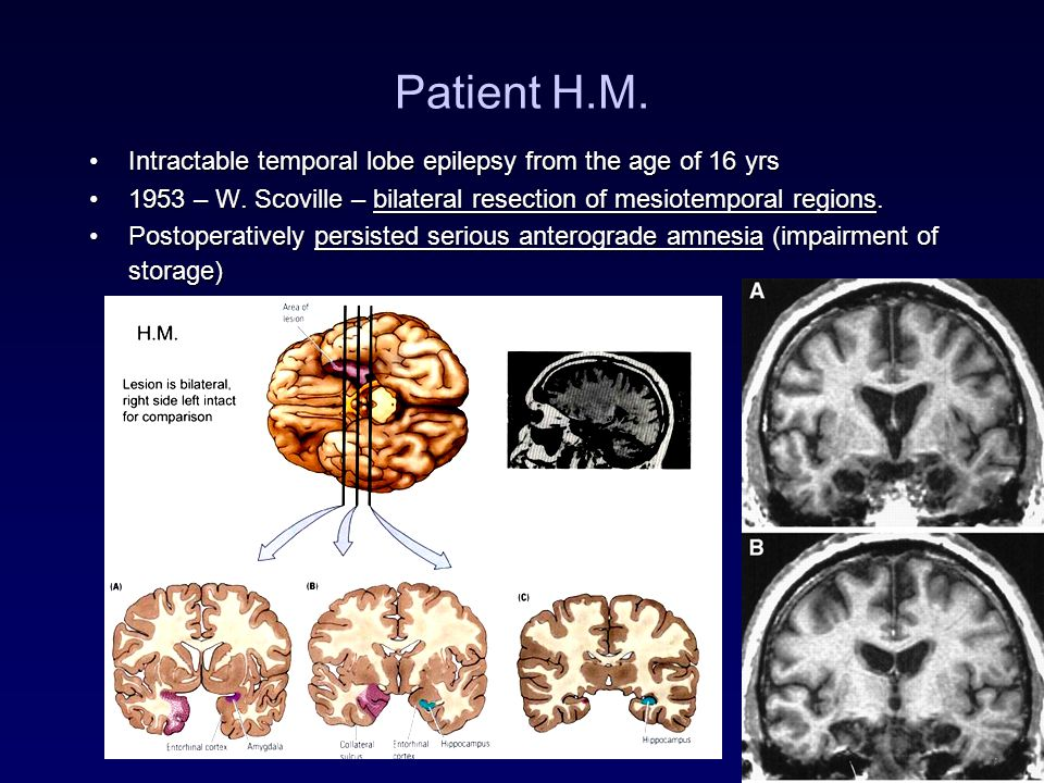 Patient H.M. Intractable temporal lobe epilepsy from the age of 16 yrsIntractable temporal lobe epilepsy from the age of 16 yrs 1953 – W. Scoville – b