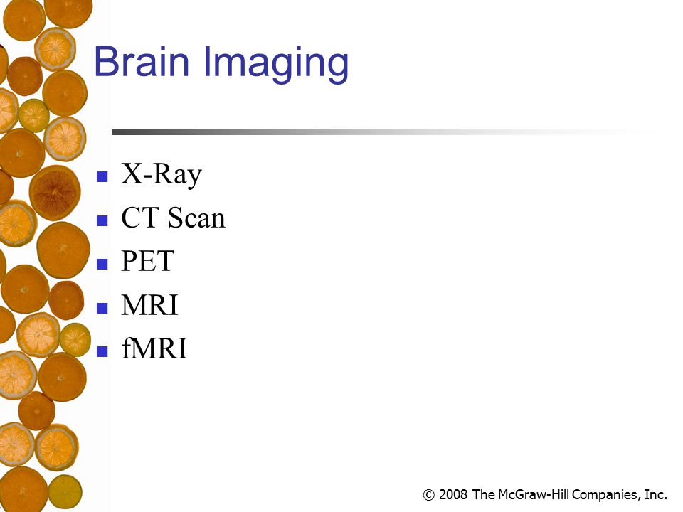 © 2008 The McGraw-Hill Companies, Inc. Brain Imaging X-Ray CT Scan PET MRI fMRI
