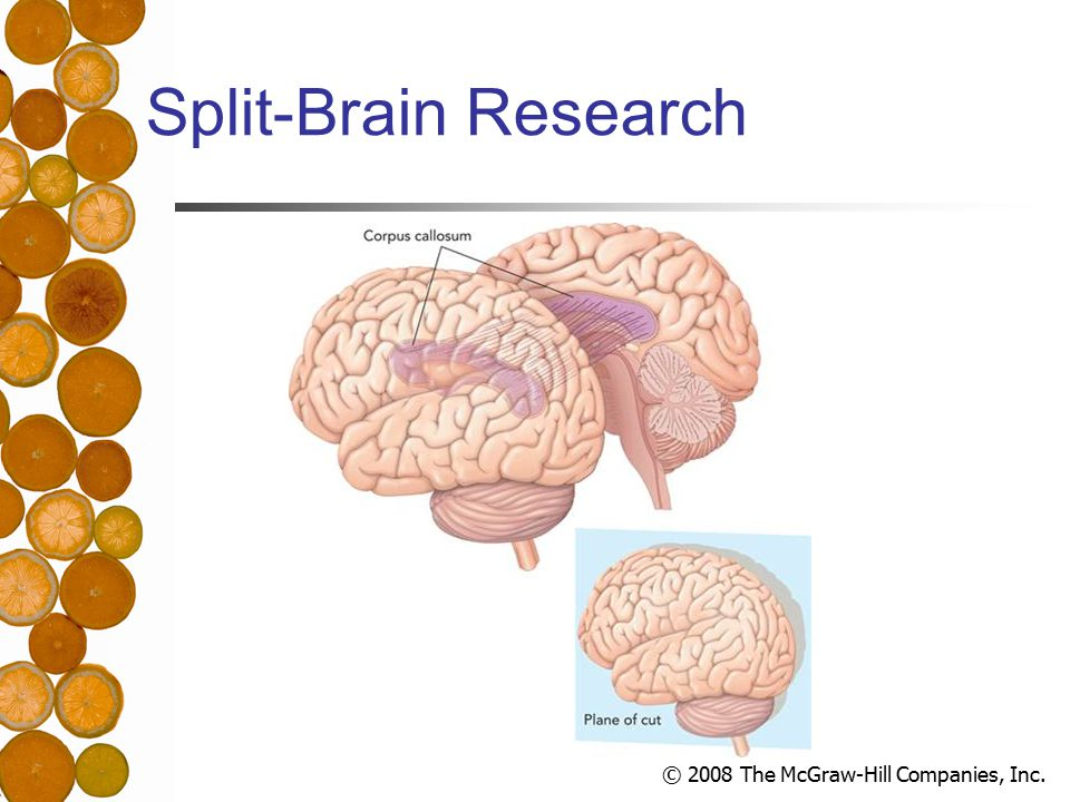 © 2008 The McGraw-Hill Companies, Inc. Split-Brain Research