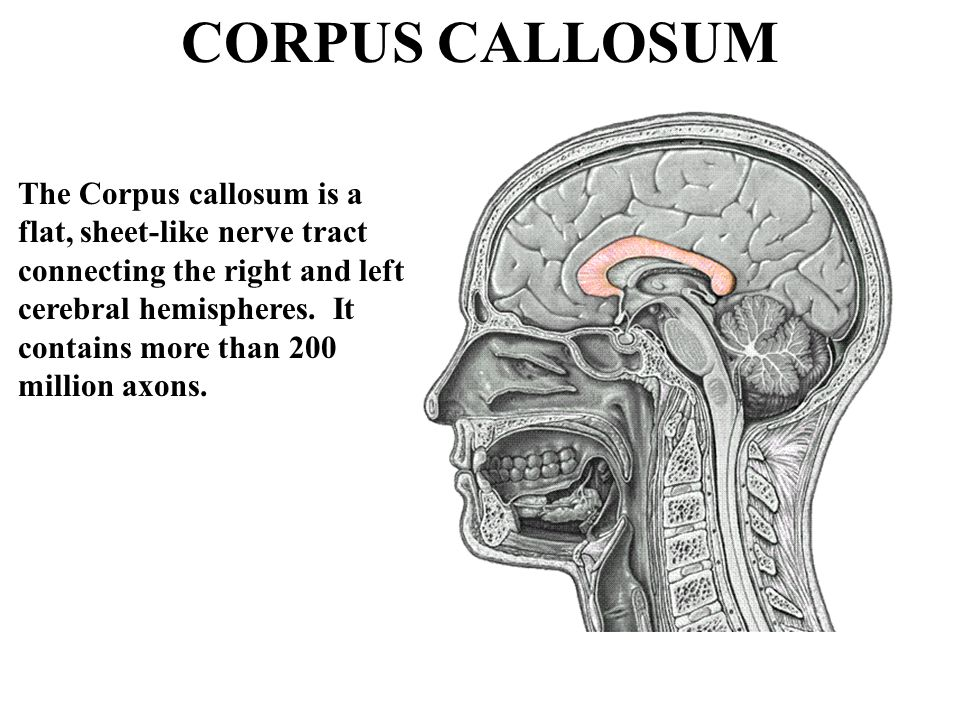 CORPUS CALLOSUM The Corpus callosum is a flat, sheet-like nerve tract connecting the right and left cerebral hemispheres. It contains more than 200 mi