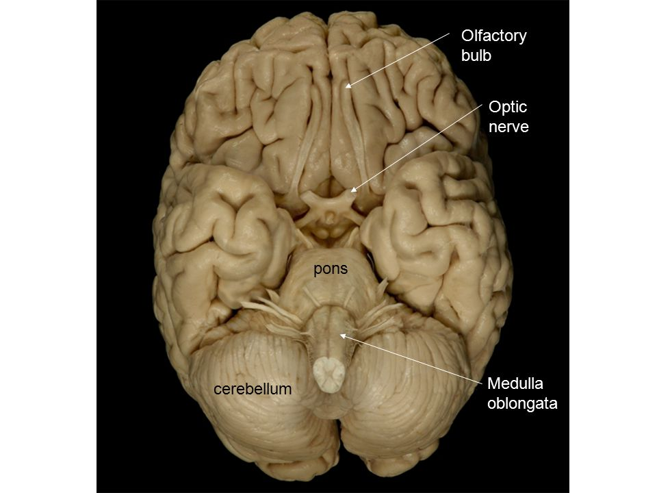 Olfactory bulb Optic nerve pons cerebellum Medulla oblongata