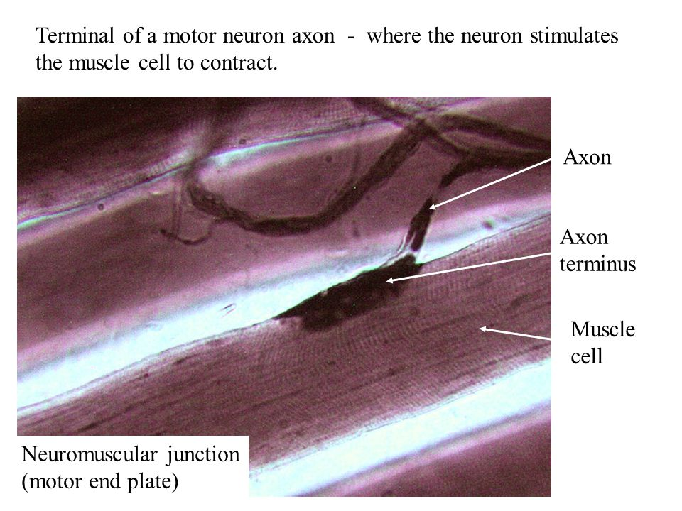 Basal Nuclei are Found Deep Below the Cerebrum