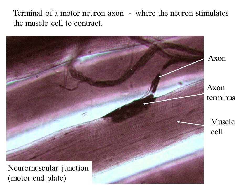 Gray matter White matter Dorsal root Dorsal root ganglion Ventral root