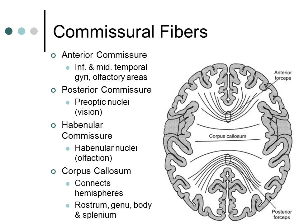 Commissural Fibers Anterior Commissure Inf. & mid. temporal gyri, olfactory areas Posterior Commissure Preoptic nuclei (vision) Habenular Commissure H