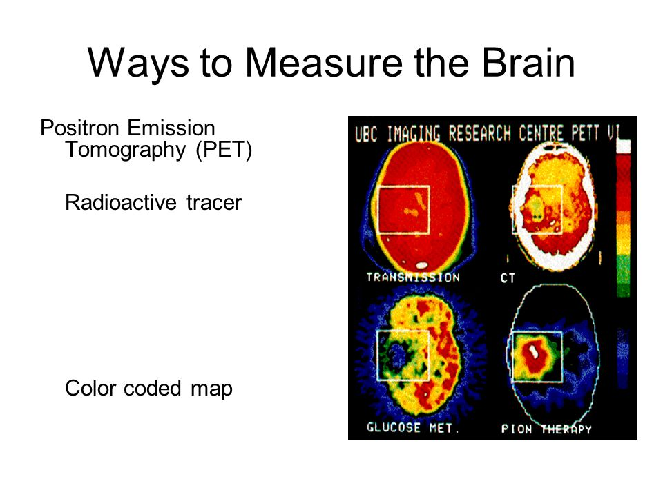 Ways to Measure the Brain Positron Emission Tomography (PET) Radioactive tracer Color coded map