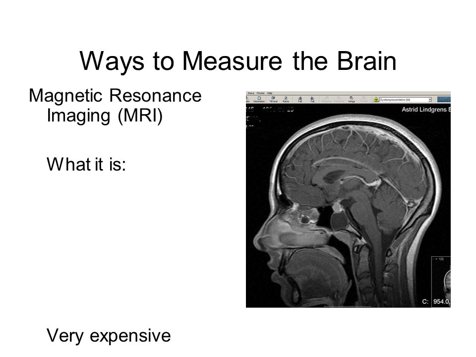 Ways to Measure the Brain Magnetic Resonance Imaging (MRI) What it is: Very expensive