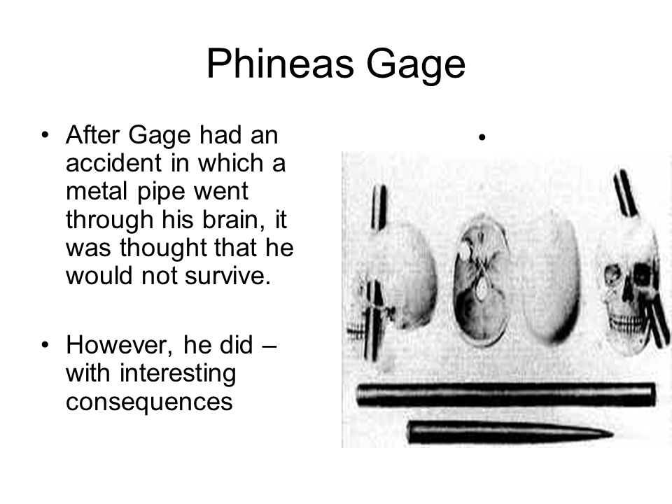 Phineas Gage After Gage had an accident in which a metal pipe went through his brain, it was thought that he would not survive.