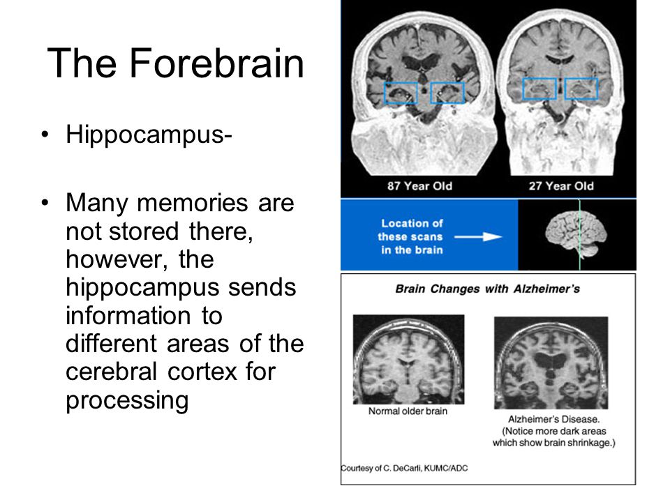 The Forebrain Hippocampus- Many memories are not stored there, however, the hippocampus sends information to different areas of the cerebral cortex for processing