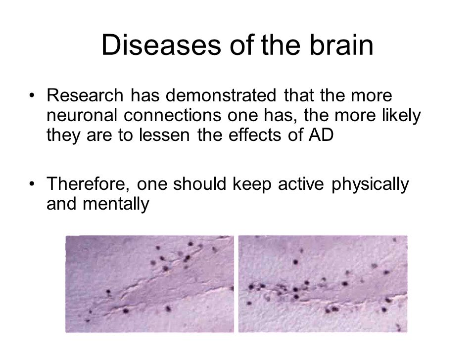 Diseases of the brain Research has demonstrated that the more neuronal connections one has, the more likely they are to lessen the effects of AD Therefore, one should keep active physically and mentally