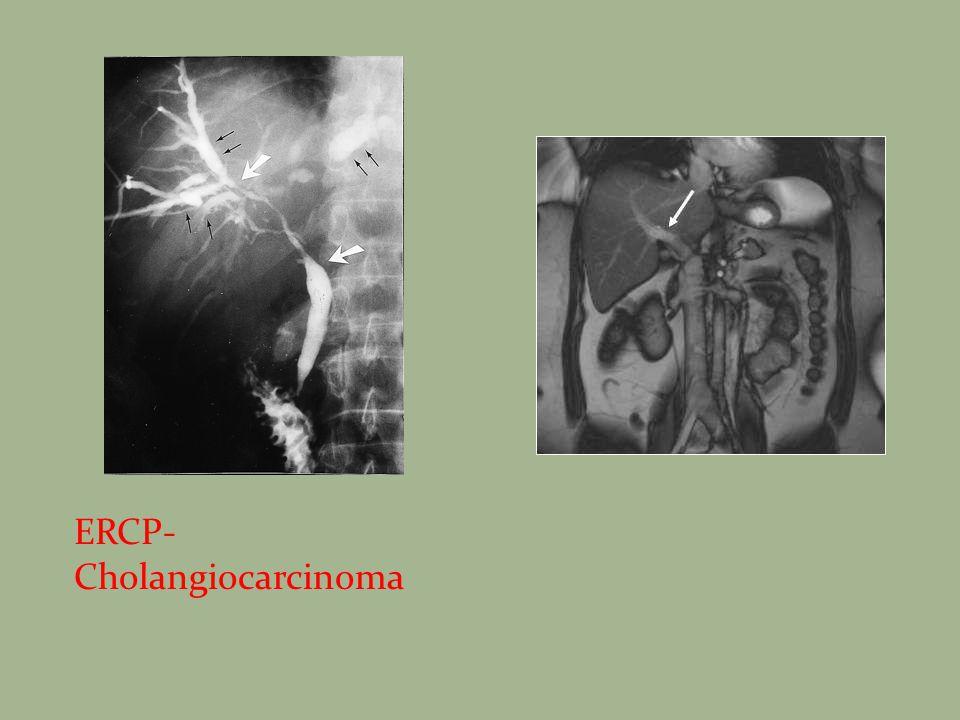 ERCP- Cholangiocarcinoma
