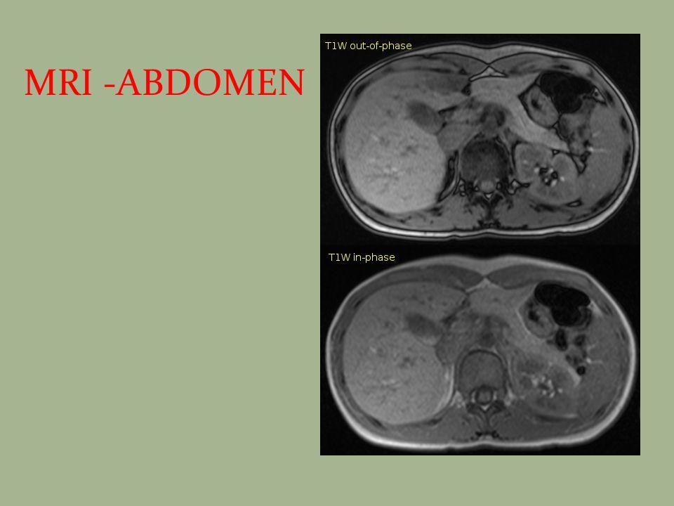 MRI -ABDOMEN