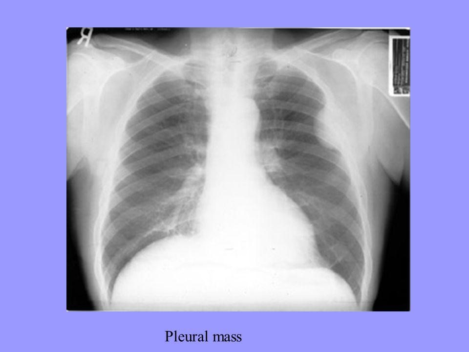 Pleural mass