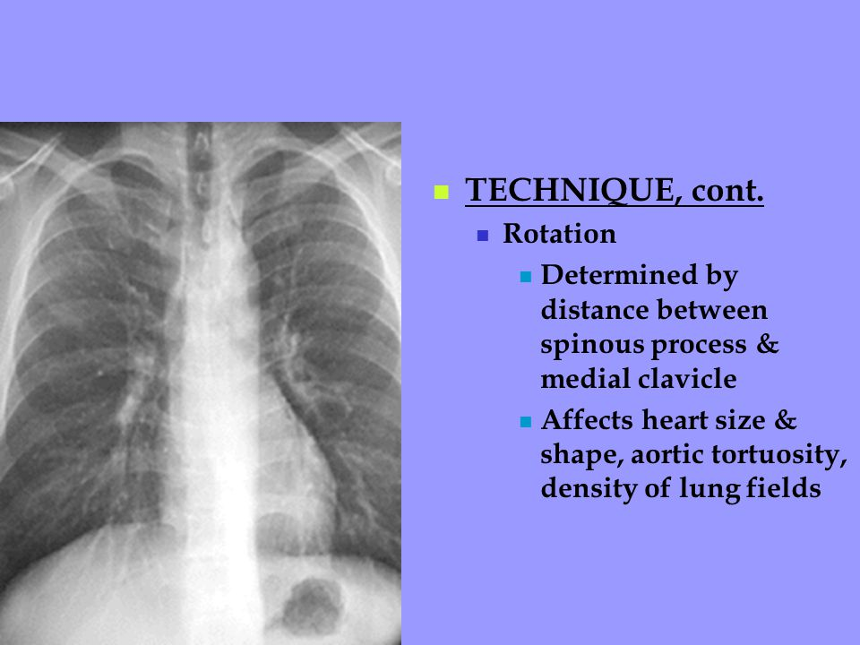 TECHNIQUE, cont. Rotation Determined by distance between spinous process & medial clavicle Affects heart size & shape, aortic tortuosity, density of l