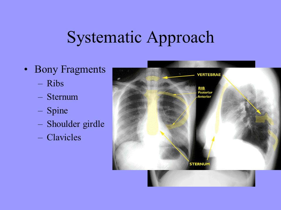 Systematic Approach Bony Fragments –Ribs –Sternum –Spine –Shoulder girdle –Clavicles