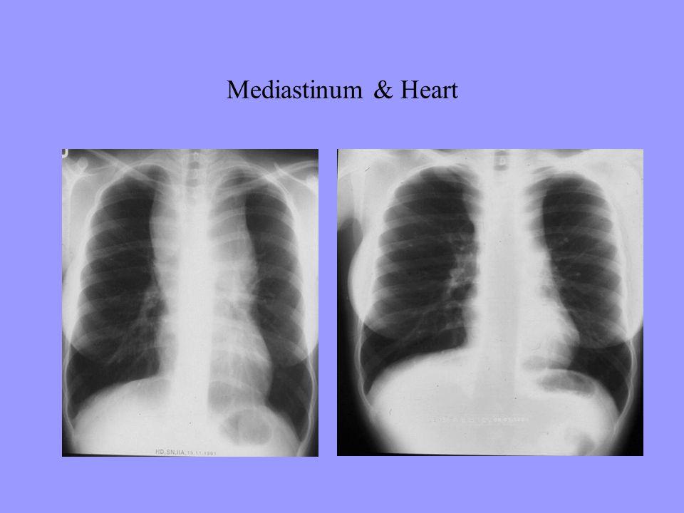 Mediastinum & Heart