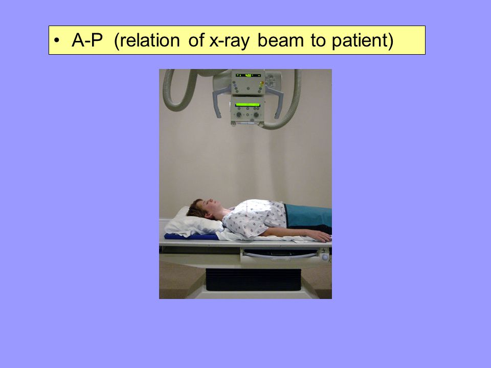 A-P (relation of x-ray beam to patient)