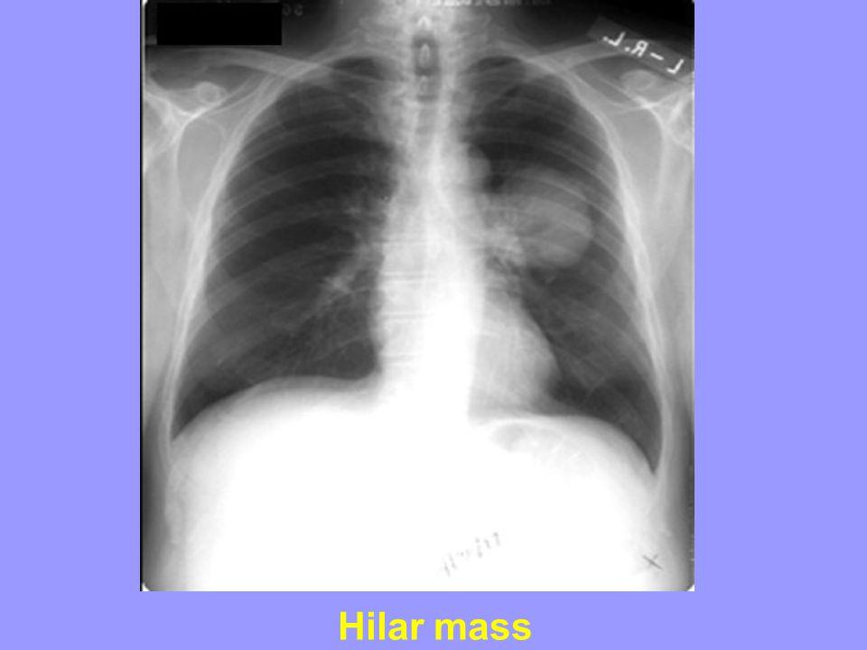 Hilar mass
