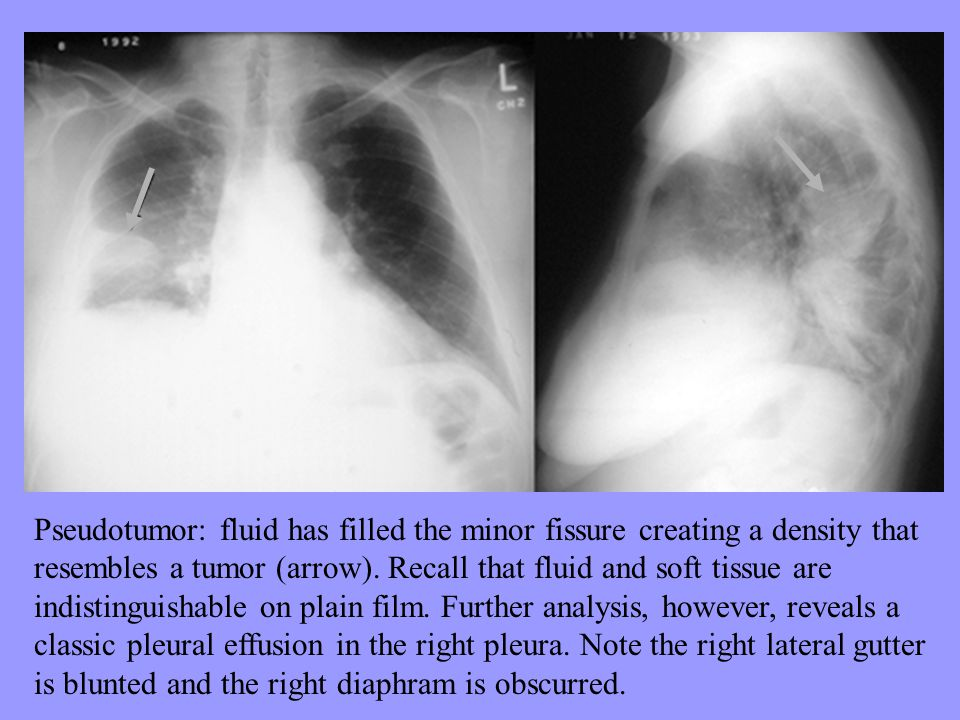 Pseudotumor: fluid has filled the minor fissure creating a density that resembles a tumor (arrow). Recall that fluid and soft tissue are indistinguish